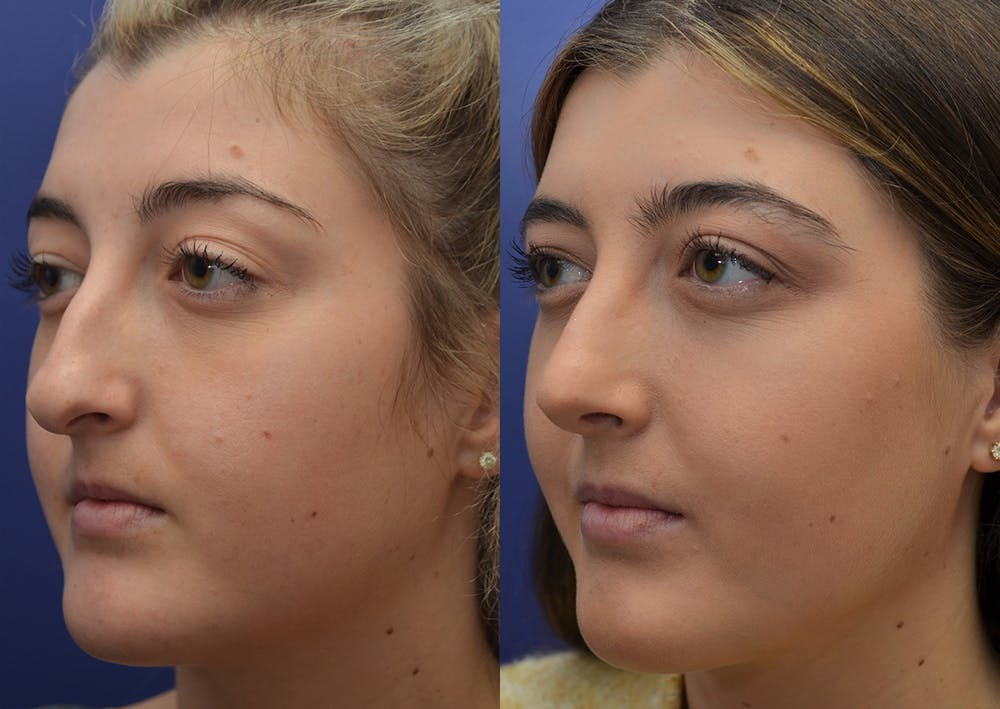 Rhinoplasty (Nose Reshaping) Gallery - Patient 5788711 - Image 2
