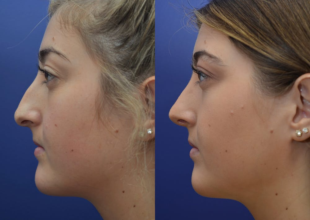 Rhinoplasty (Nose Reshaping) Gallery - Patient 5788711 - Image 3