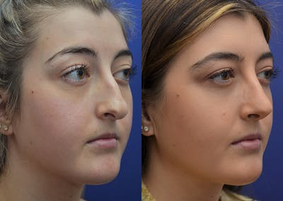 Rhinoplasty (Nose Reshaping) Gallery - Patient 5788711 - Image 4