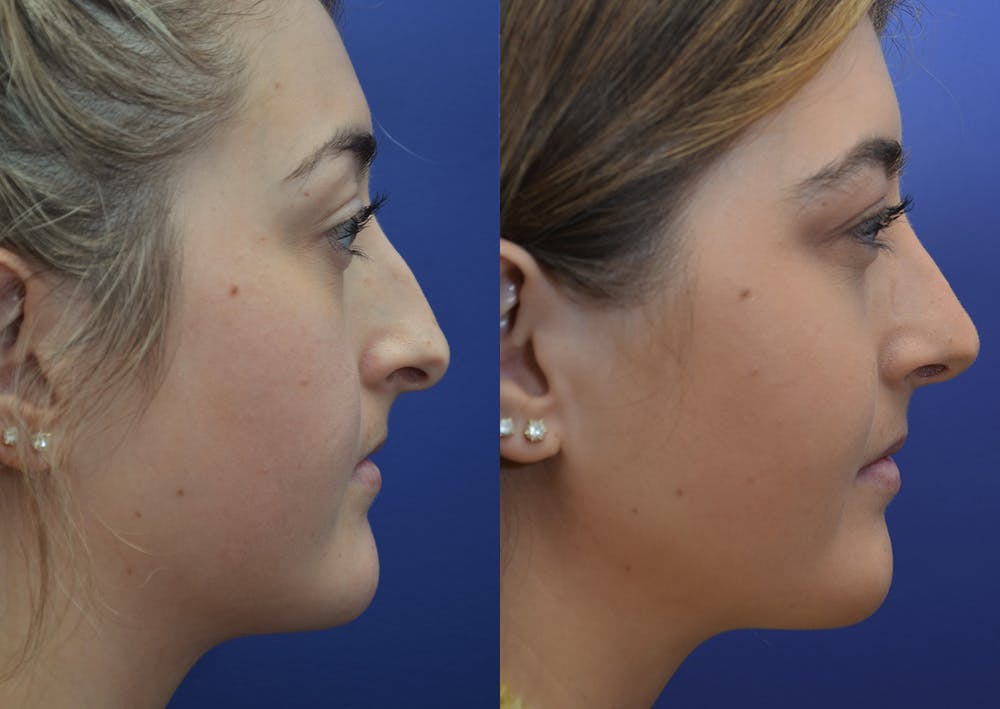 Rhinoplasty (Nose Reshaping) Gallery - Patient 5788711 - Image 5