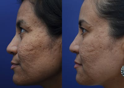 Micro Needling Gallery - Patient 5788737 - Image 1