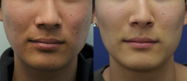 Micro Needling Gallery - Patient 5788738 - Image 1