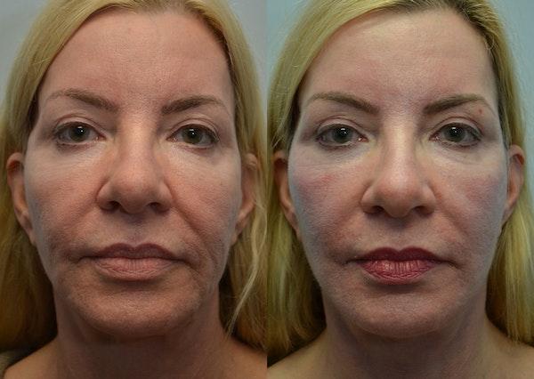 Facelift Gallery - Patient 4588121 - Image 1