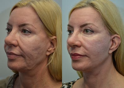 Facelift Gallery - Patient 4588121 - Image 2