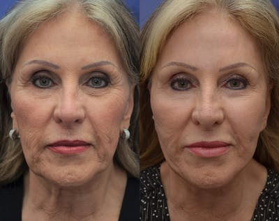 Facelift Gallery - Patient 5882979 - Image 1
