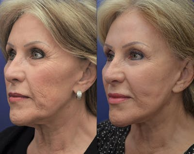 Facelift Gallery - Patient 5882979 - Image 2