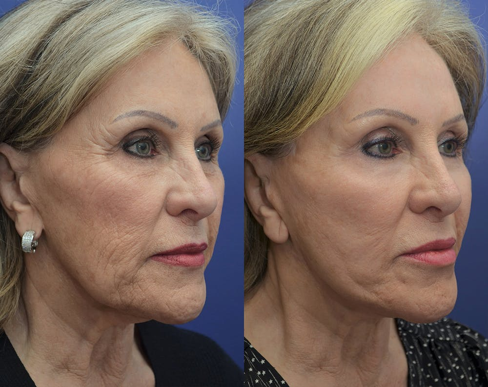 Facelift Gallery - Patient 5882979 - Image 3