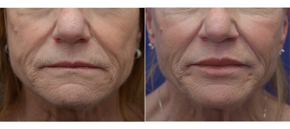 Non-Surgical Soft Tissue Fillers Gallery - Patient 5883017 - Image 1