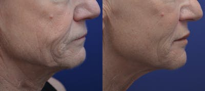Non-Surgical Soft Tissue Fillers Gallery - Patient 5883017 - Image 2