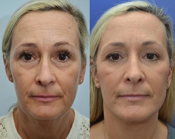 Facelift Gallery - Patient 5929080 - Image 1