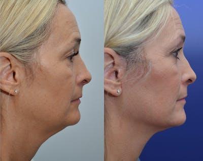 Facelift Gallery - Patient 5929080 - Image 2