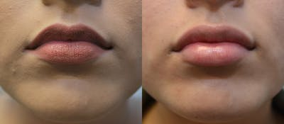Lip Enhancement Gallery - Patient 4588511 - Image 8