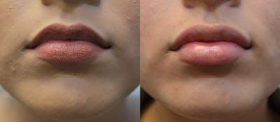 Lip Enhancement Gallery - Patient 4588511 - Image 1