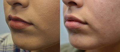 Lip Enhancement Gallery - Patient 4588511 - Image 2
