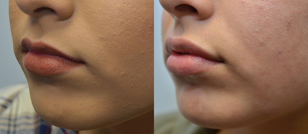 Lip Enhancement Gallery - Patient 4588511 - Image 2