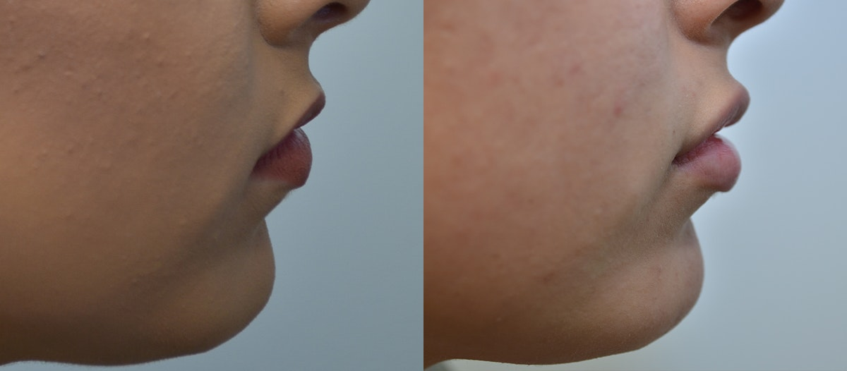 Lip Enhancement Gallery - Patient 4588511 - Image 3