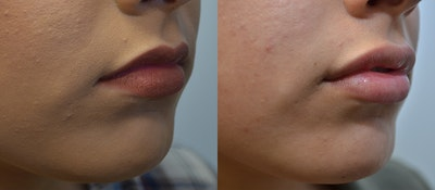 Lip Enhancement Gallery - Patient 4588511 - Image 4
