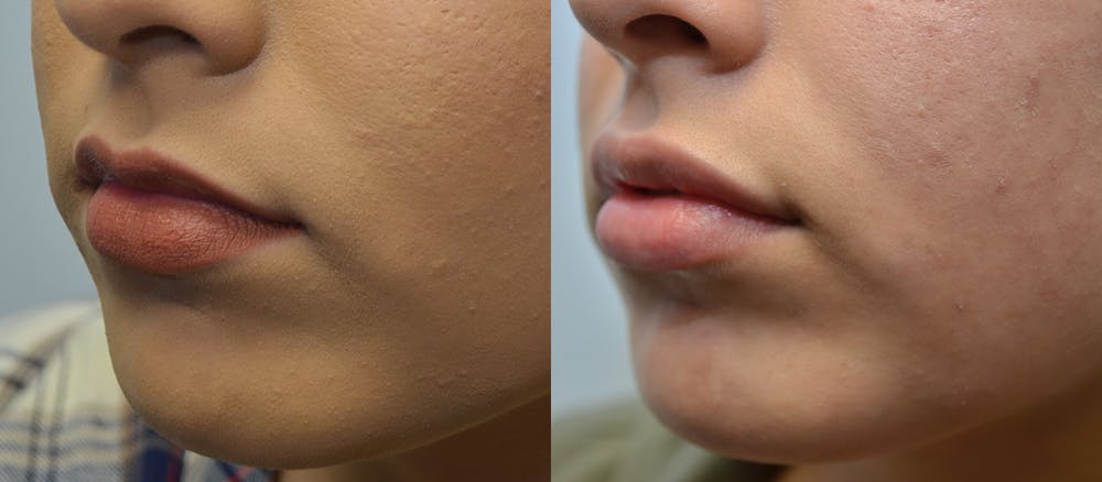 Non-Surgical Soft Tissue Fillers Gallery - Patient 5929321 - Image 2