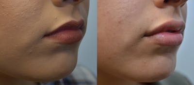 Non-Surgical Soft Tissue Fillers Gallery - Patient 5929321 - Image 4