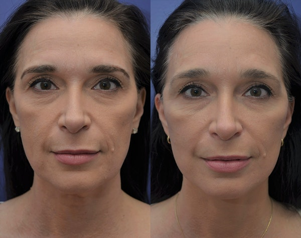 Facelift Gallery - Patient 5930601 - Image 1