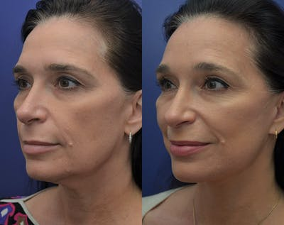 Facelift Gallery - Patient 5930601 - Image 2