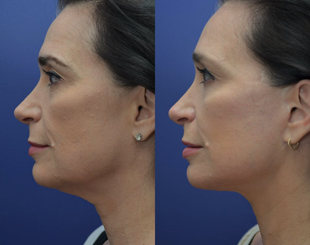 Facelift Gallery - Patient 5930601 - Image 3
