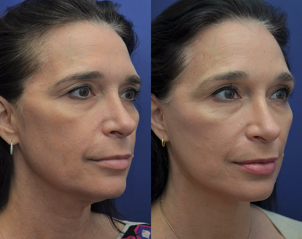 Facelift Gallery - Patient 5930601 - Image 4