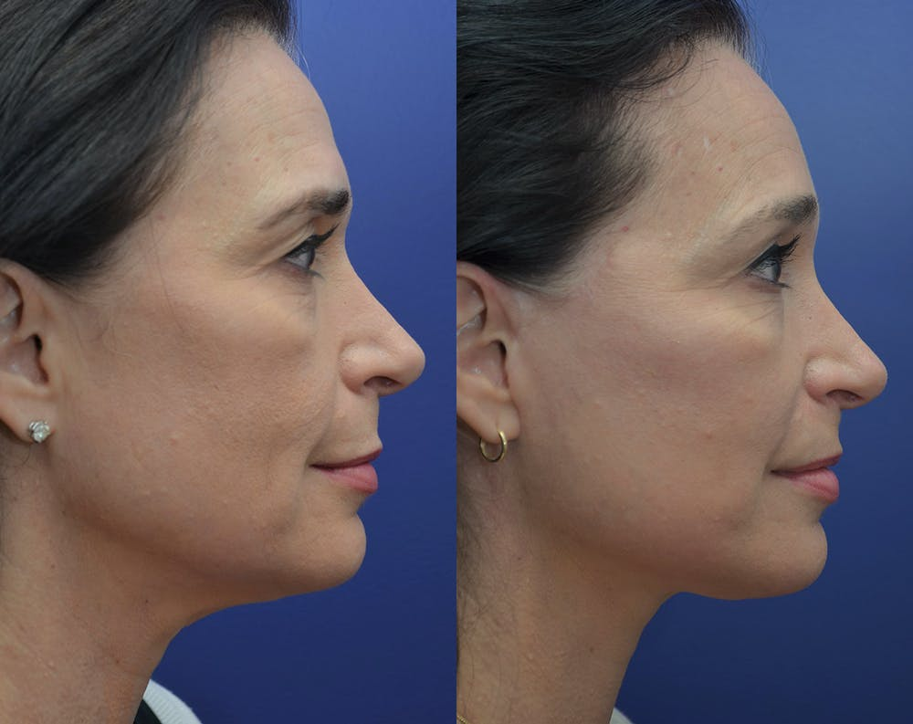Facelift Gallery - Patient 5930601 - Image 5