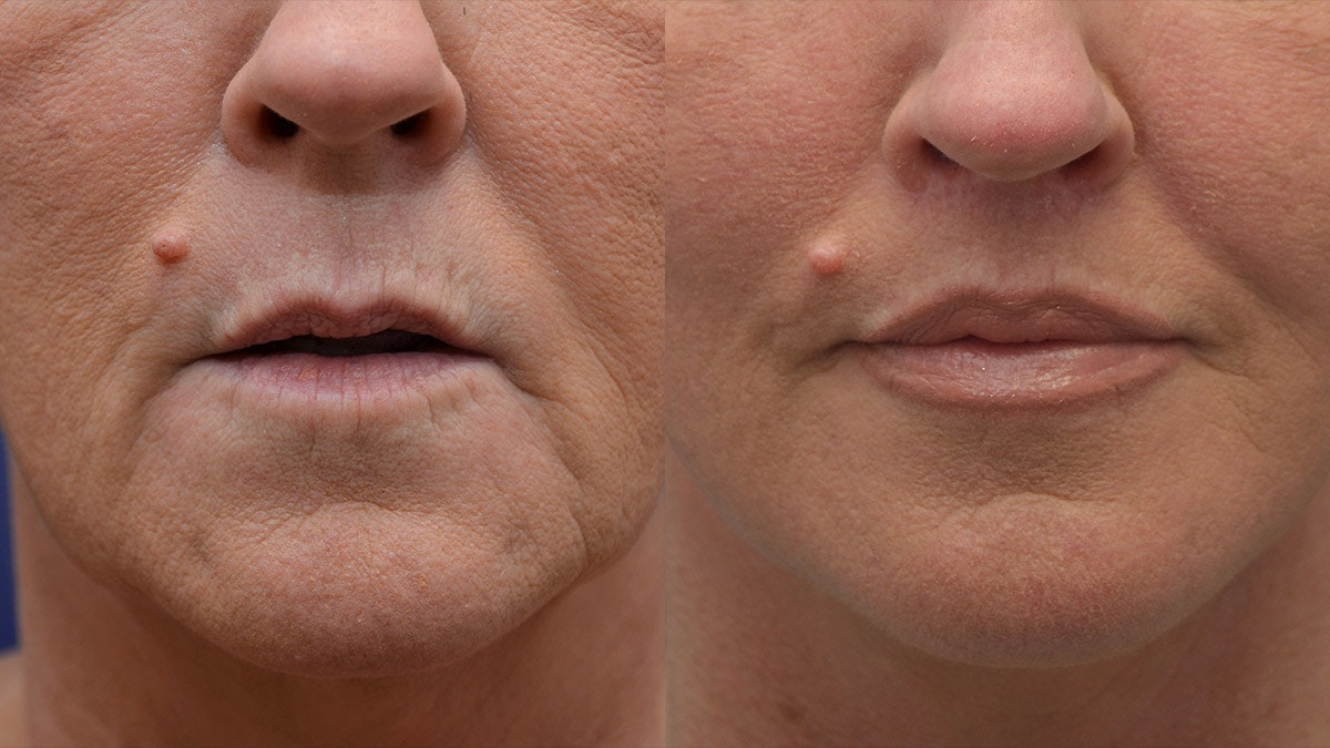 Lip Augmentation Gallery - Patient 4588522 - Image 1
