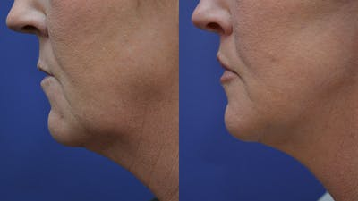 Lip Augmentation Gallery - Patient 4588522 - Image 2