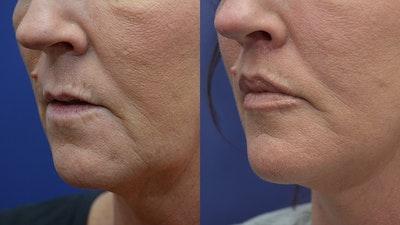 Lip Lift Gallery - Patient 4588525 - Image 4