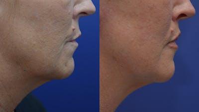 Lip Augmentation Gallery - Patient 4588522 - Image 4