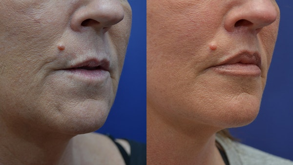 Lip Lift Gallery - Patient 4588525 - Image 1