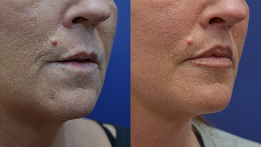 Lip Augmentation Gallery - Patient 4588522 - Image 5