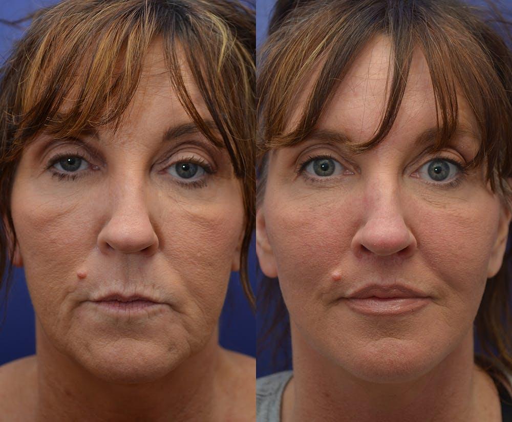Facelift Gallery - Patient 4641389 - Image 1