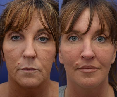 Facelift Gallery - Patient 4641389 - Image 1