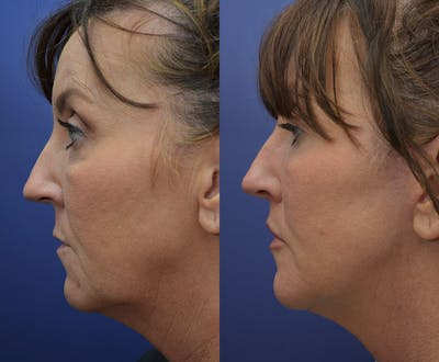 Facelift Gallery - Patient 4641389 - Image 4