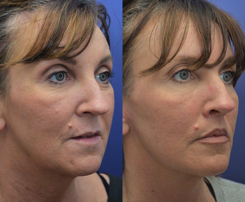 Facelift Gallery - Patient 4641389 - Image 3