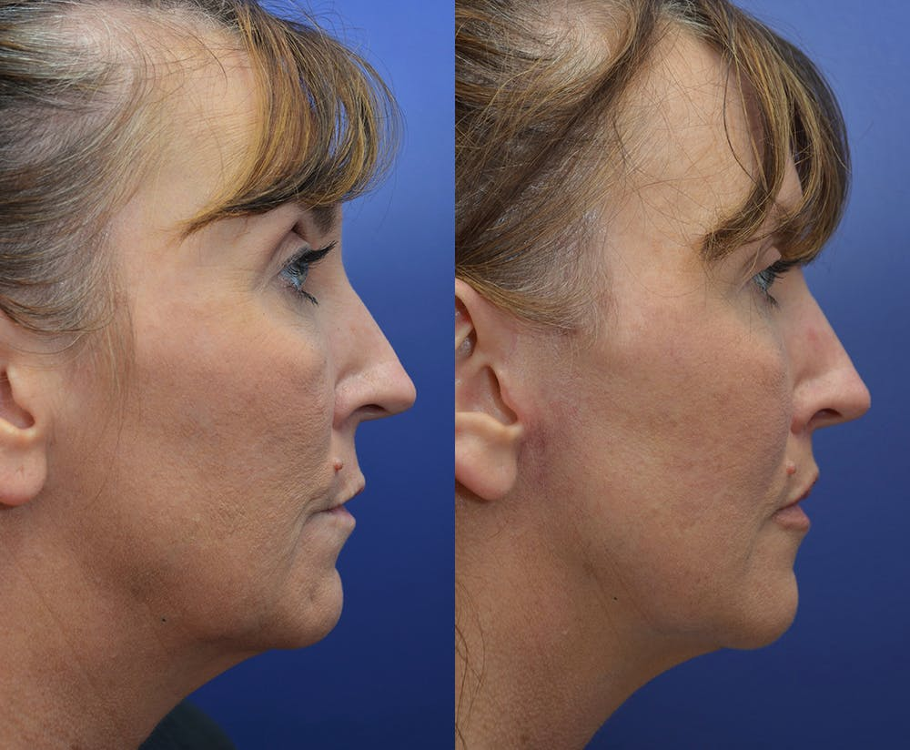 Facelift Gallery - Patient 4641389 - Image 5