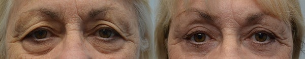 Eyelid Surgery Gallery - Patient 6371388 - Image 1