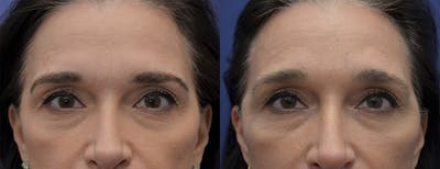 Brow Lift (Forehead Lift) Gallery - Patient 5930602 - Image 1
