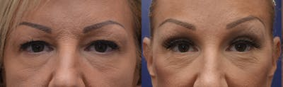 Brow Lift (Forehead Lift) Gallery - Patient 4588634 - Image 1