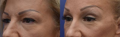 Brow Lift (Forehead Lift) Gallery - Patient 4588634 - Image 2