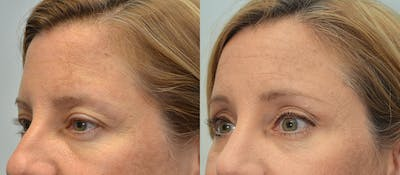 Brow Lift (Forehead Lift) Gallery - Patient 4588641 - Image 2