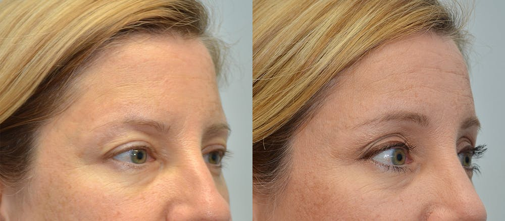 Brow Lift (Forehead Lift) Gallery - Patient 4588641 - Image 3