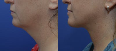 Neck Lift Gallery - Patient 5288973 - Image 1