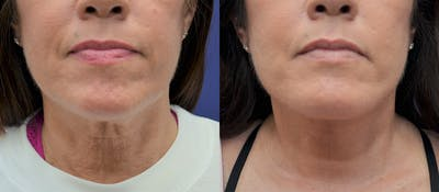 Neck Lift Gallery - Patient 5930610 - Image 1