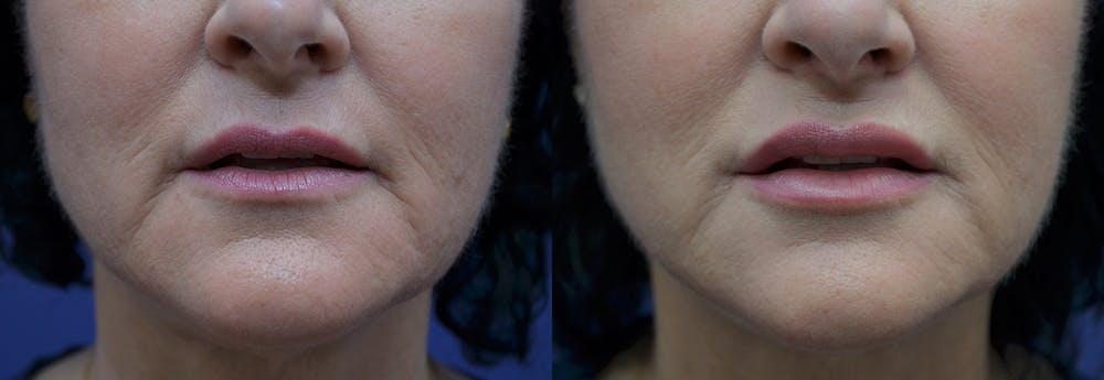 Lip Enhancement Gallery - Patient 8694344 - Image 1