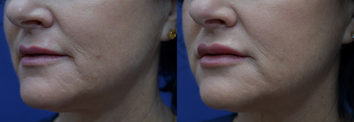 Lip Enhancement Gallery - Patient 8694344 - Image 2