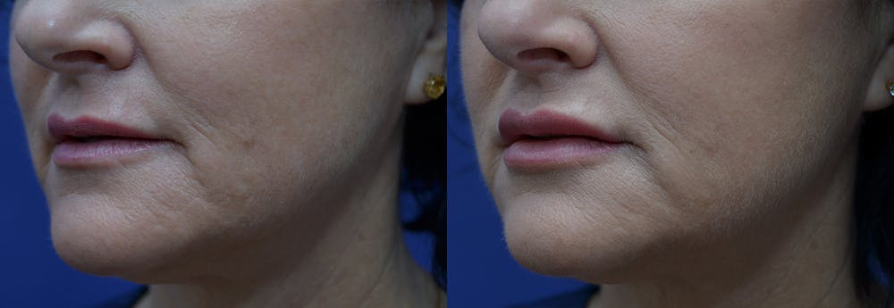 Lip Enhancement Gallery - Patient 8694344 - Image 2